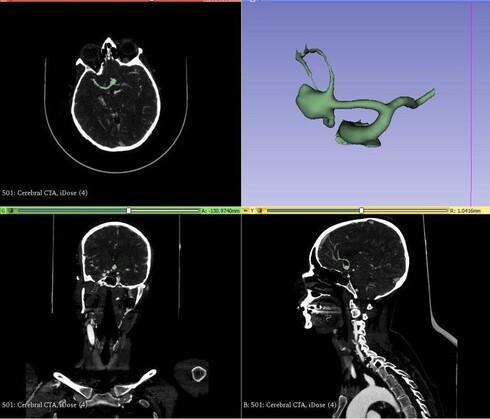 מודל מוח בתלת מימד