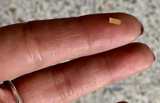 חתיכת הספגטי שחדרה לאצבע. צילום: מכבי שירותי בריאות